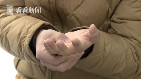 男子沉迷手遊致手指僵硬 醫生:嚴重可致終生障礙