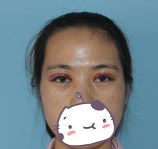 全切双眼皮,一单一双的大小眼终于得到改善,越一美女泳装图片