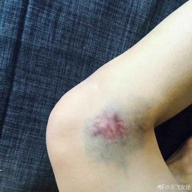 让人心疼!膝盖门将女足大块现美女淤青美女图片中国台湾图片