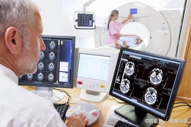 做一次脑CT,对身体有多大伤害?这些大实话也
