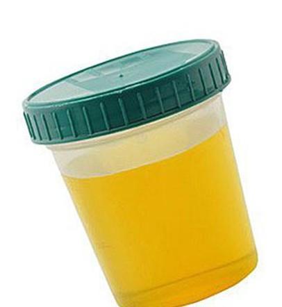 早上起来小便,尿很黄,是不是肝不好导致的?中